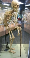 Skeletons Orlando Mensch